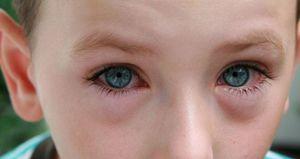 Конъюнктивит - особенности заболевания глаз