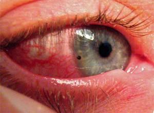 Симптомы конъюнктивита - воспаленные глаза, выделения
