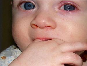 Как происходит заражение вирусным конъюнктивитом у детей