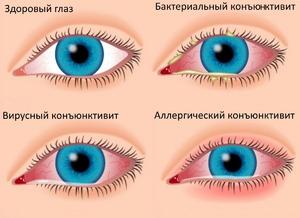 Определить симптомы