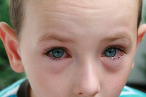Лечение конъюктивита у детей