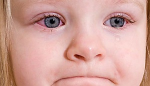 Дети и конъюнктивит