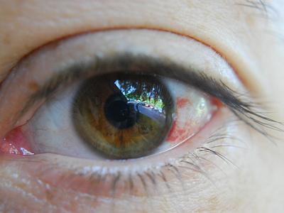 Если лопнул сосуд в глазу: почему это происходит и причины разрыва, что делать, если лопается капилляр