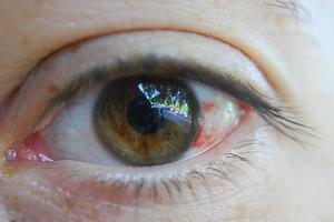отчего происходит разрыв сосудов в глазах