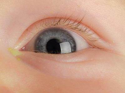 Гноится глаз у ребенка чем закапать