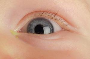 У новорожденного гноиться глаз чем лечить в домашних условиях 625