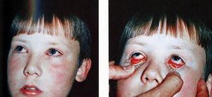 Конъюнктивит неифекционный может появиться после раздражения и физического воздействия