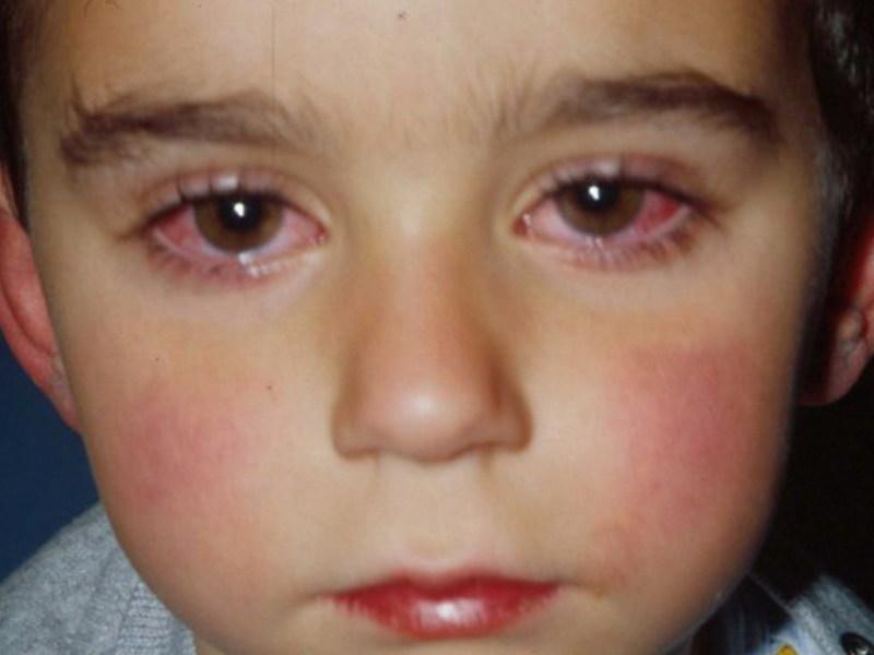 Конъюнктивит симптомы у взрослых лечение в домашних условиях 100
