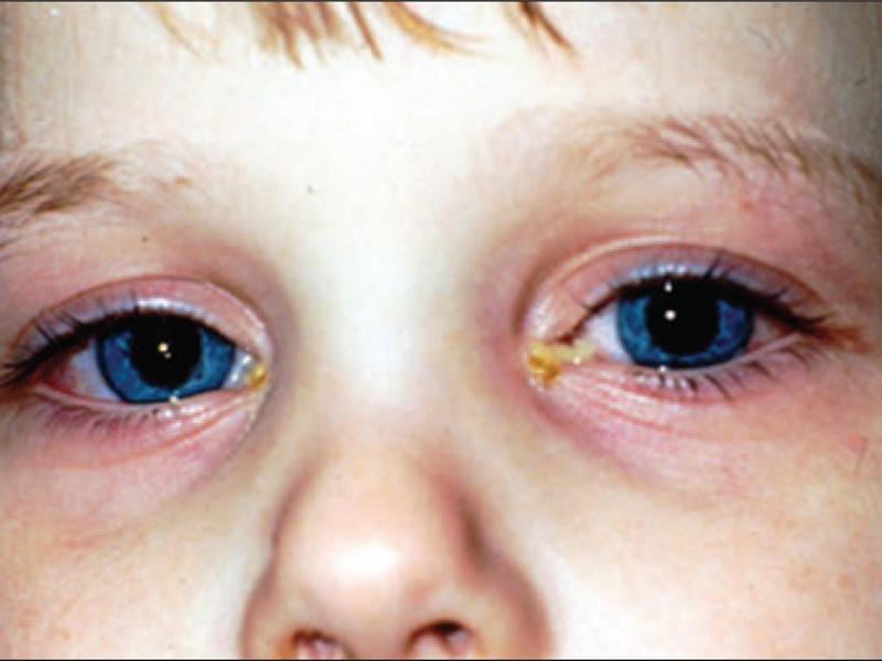 Конъюнктивит симптомы температура