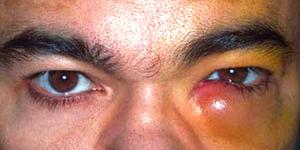 Дакрицистит слезной протоки и другие болезни глаз