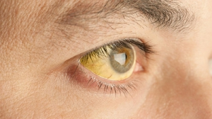 Почему появилось желтое пятно в глазе