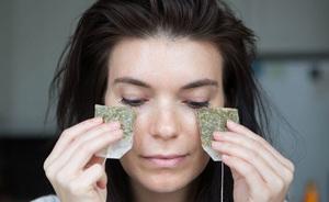 Примочки из зеленого чая помогают бороться с ячменем на глазу