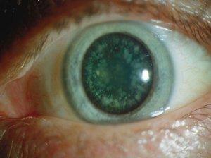 Почему появляется катаракта