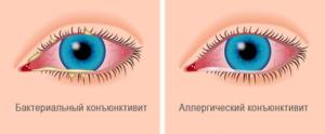 Различные виды конъюнктивита