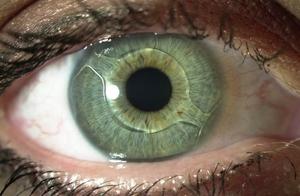 Признаки вторичной катаракты