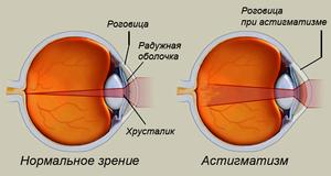 Попали ногтем в глаз что делать упало зрение