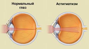 Можно ли восстановить зрение при минус 0.75