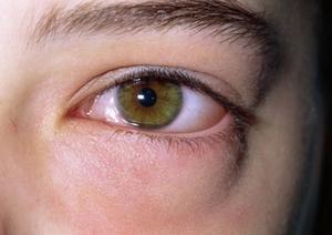 аллергия припухлость под глазами