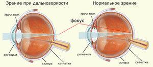 Операции по улучшению зрения отзывы