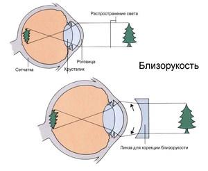 Что нужно делать чтобы улучшить плохое зрение