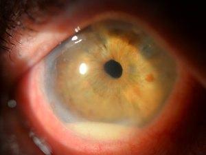 Иридоциклит - сочетанное воспаление радужки и ресничного (цилиарного) тела глаза