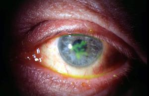 Кератит - воспаление радужки, может быть причиной появления иридоциклита