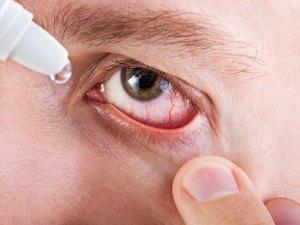Особенности лечения покраснения и воспаления глаз