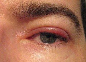 Описание воспалительных заболеваний глаза