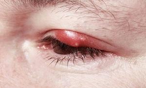 Описание симптомов воспаления глаз