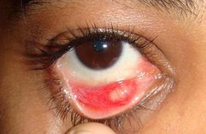 Особенности воспалительных процессов глаз