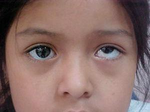 Восстановление зрения паучок