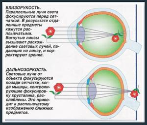 Близорукость - особенности, дальнозоркость - отличия