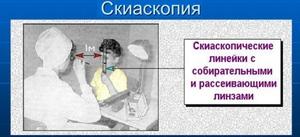Скиаскопия - как проводится процедура