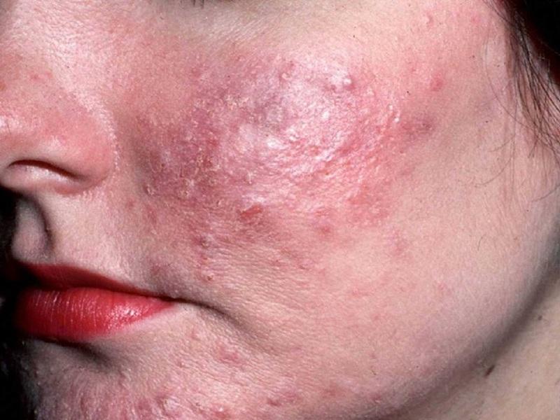 натуральные материалы демодекоз лечение кожи лица в домашних условиях заключение: помните, что
