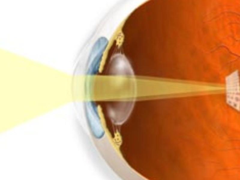 Операции по коррекции зрения гельмгольца