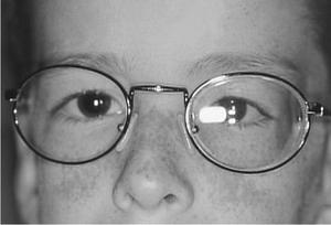 Слабость соединительной ткани близорукость