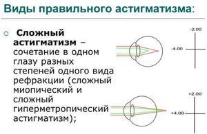Визуализация в коррекции зрения