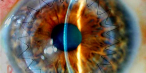 Пелена в глазах расплывчатое зрение