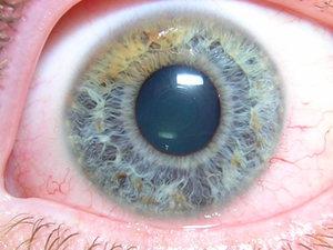 Описание патологии глаукомы глаз