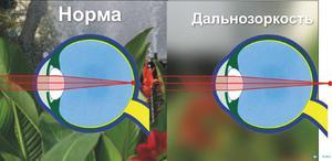 Сравнение нормального зрения и гиперметропии