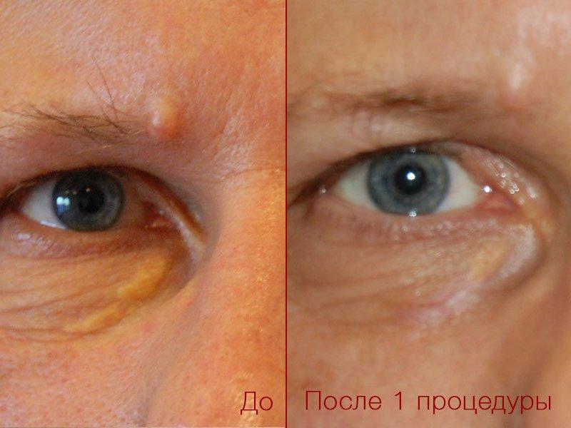 Глаз после удаления невуса