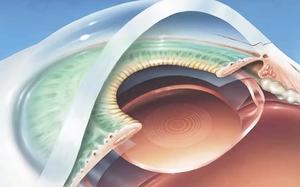 Лазерная коррекция зрения в москве клиника коновалова в москве