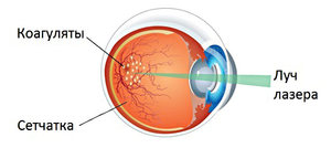 Отзывы о лазернойкоагуляции сетчатки глаза