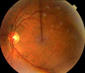 Трамва и развитие ретинопатии