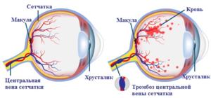 Признаки ретинопатии