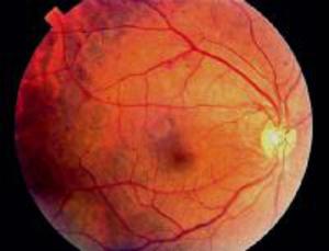 Как диагностируется ретинопатия