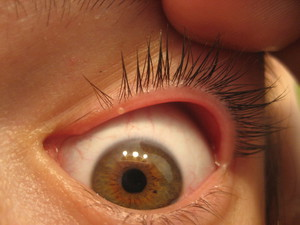 Блефарит - симптомы
