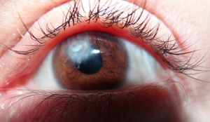 Описание возможных последствий лазерной коррекции зрения