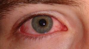 Противопоказания для проведения коррекции зрения лазером