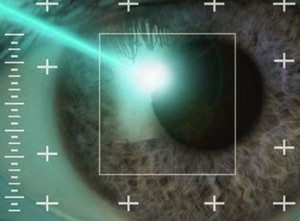 Операция глаукомы - современная коррекция лазером